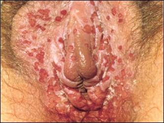 Charlotte Church vaginal Herpes simplex genital warts